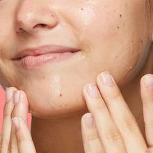 neutrogena-dry-skin-image